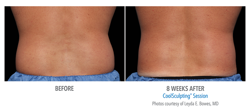 CoolSculpting Flanks Love Handles Tampa