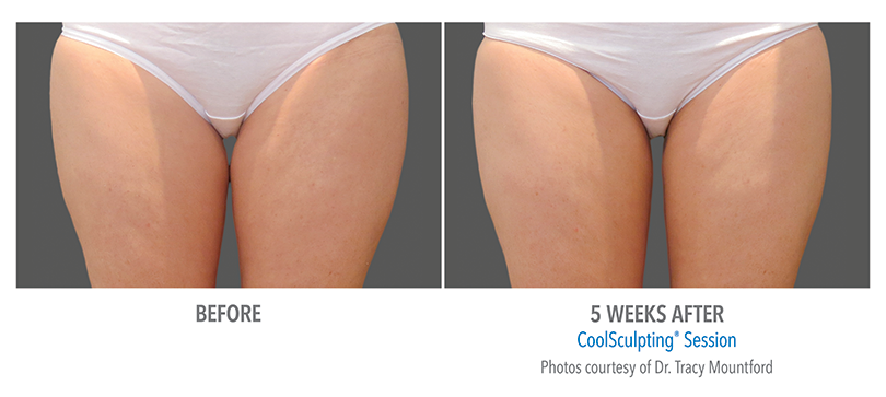 Inner Thighs CoolSculpting