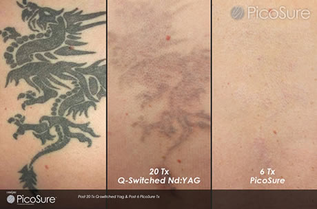 faces of south tampa cynosure picosure tattoo removal